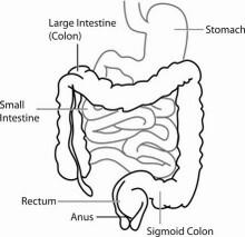 Entzündungswerte Darm Entzündung